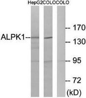 Western blot analysis of extracts from HepG2 cells and COLO cells using ALPK1 antibody