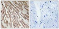 Immunohistochemical analysis of formalin-fixed and paraffin-embedded human heart tissue using ARPP21 antibody